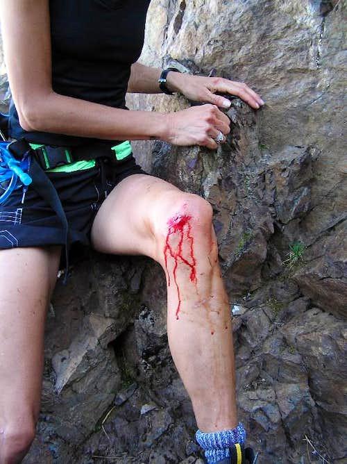 Knee vs. Rock