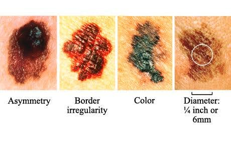 ABCD Skin Cancer
