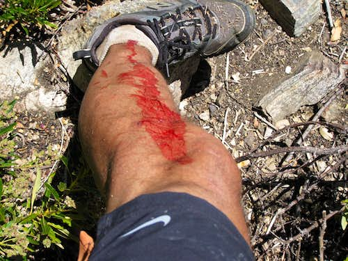 Yucca Wound on Trail Run along Barley Flats Trail