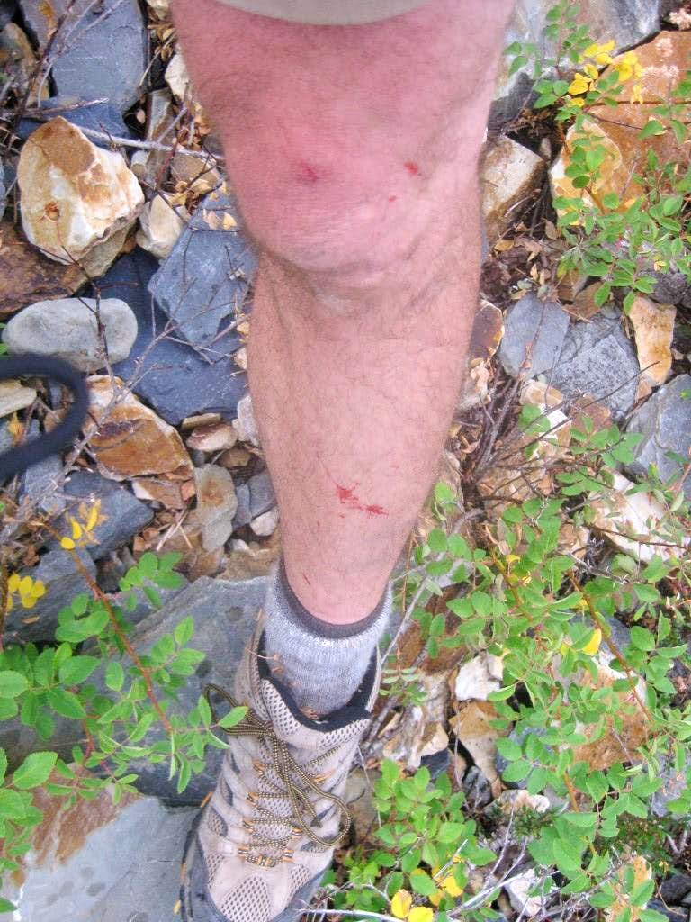 Bushwacked Legs