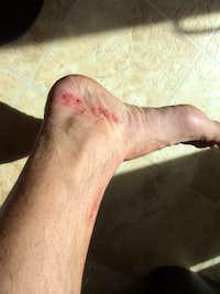 foot damage 1