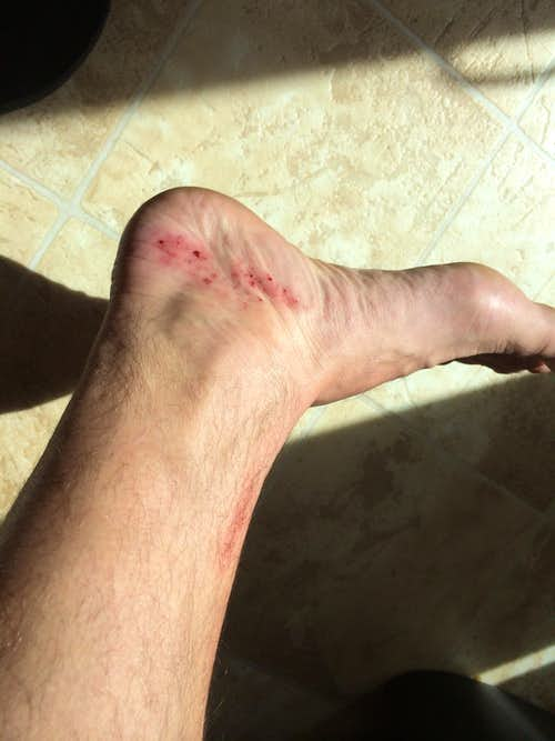 foot damage 1