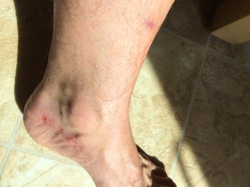 foot damage 3