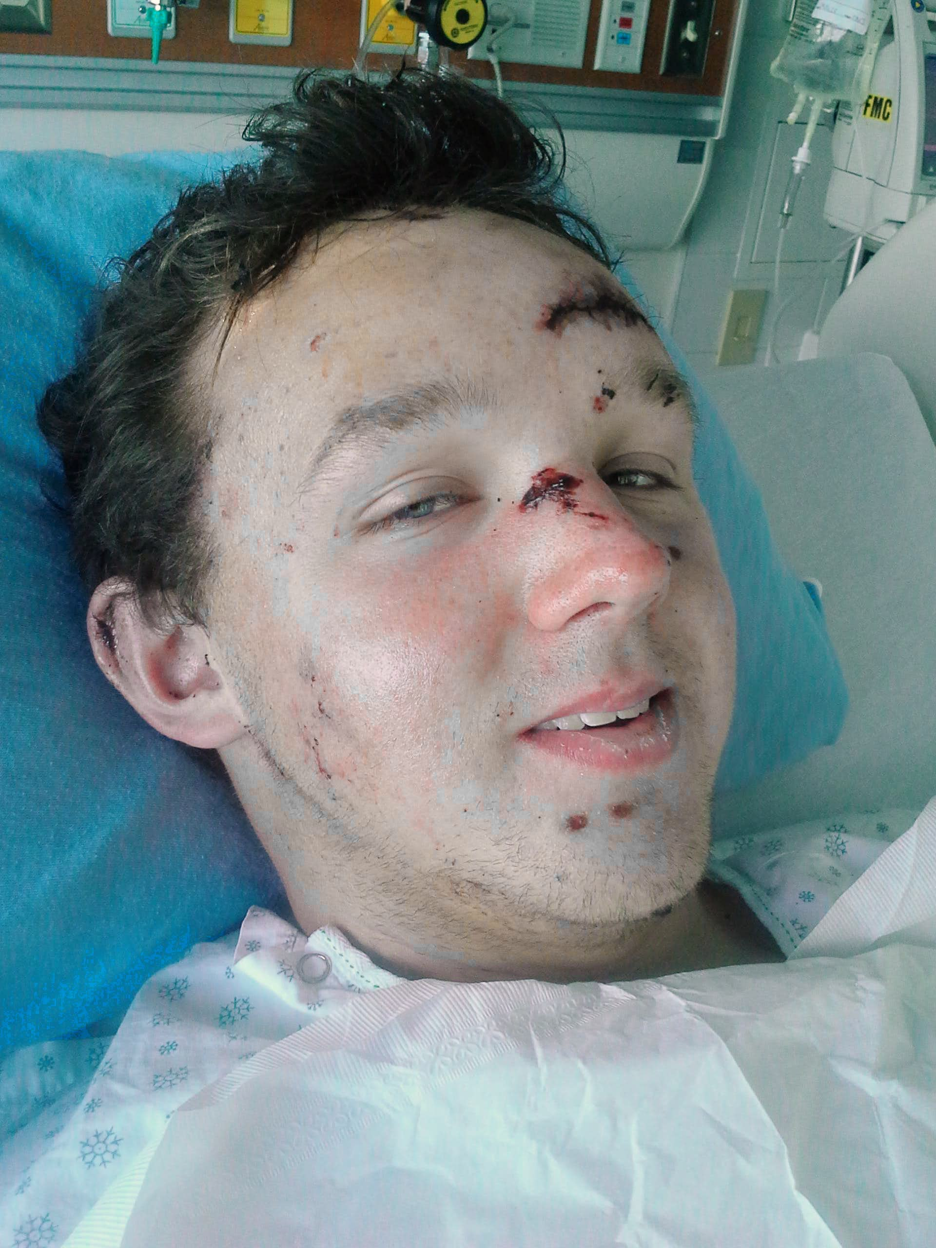 The Aftermath, Josh\'s accident in the Canadian Rockies